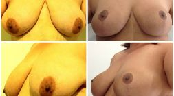 breast-lift_001