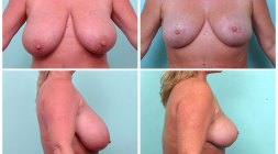 breast-reduction_001