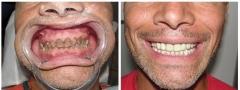 dental_001