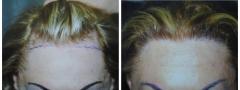 hair-restoration_001