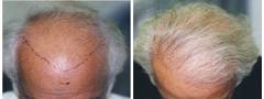 hair-restoration_002