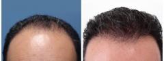 hair-restoration_004