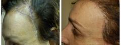 hair-restoration_005