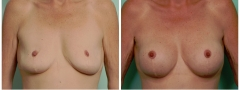 awl-breast