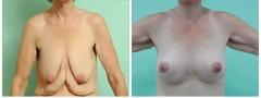 post-bariatric-breast-lift_001