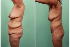tummy-tuck-005