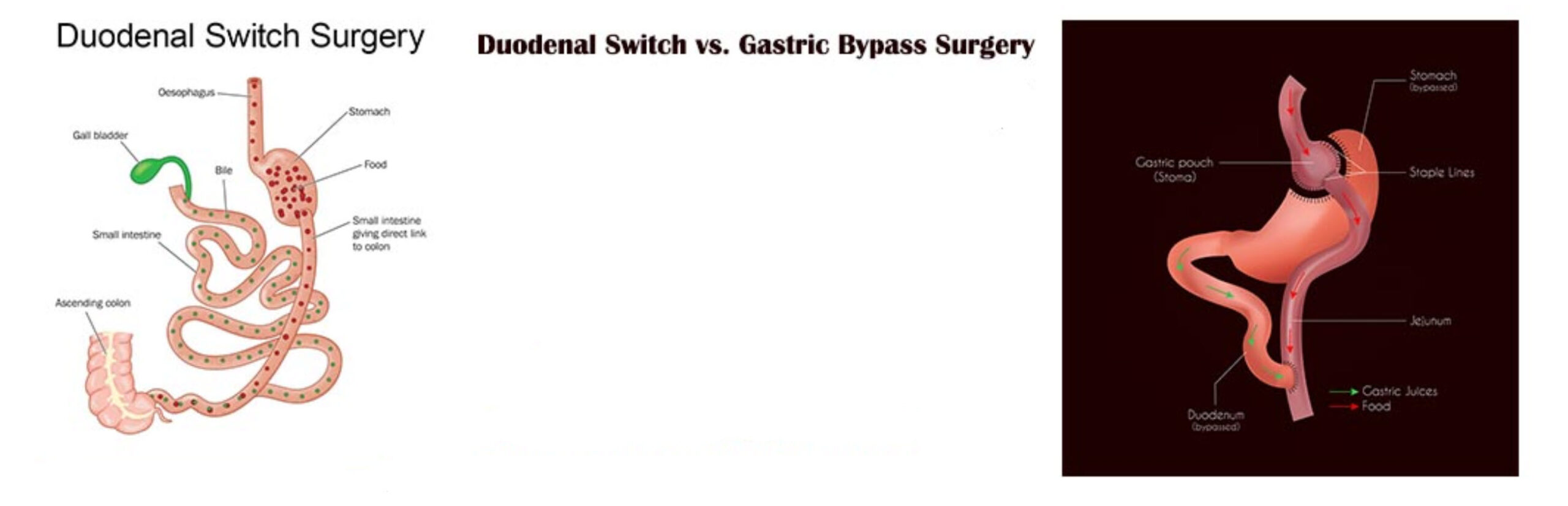 duodenal switch vs gastric bypass