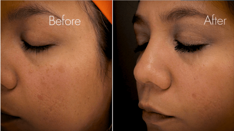 acne scars treated with laser