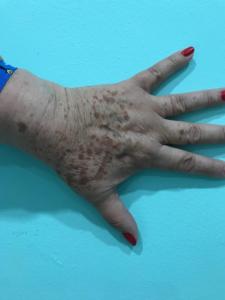 darkspots hand