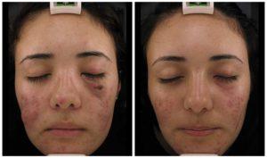 Acne scars IPL