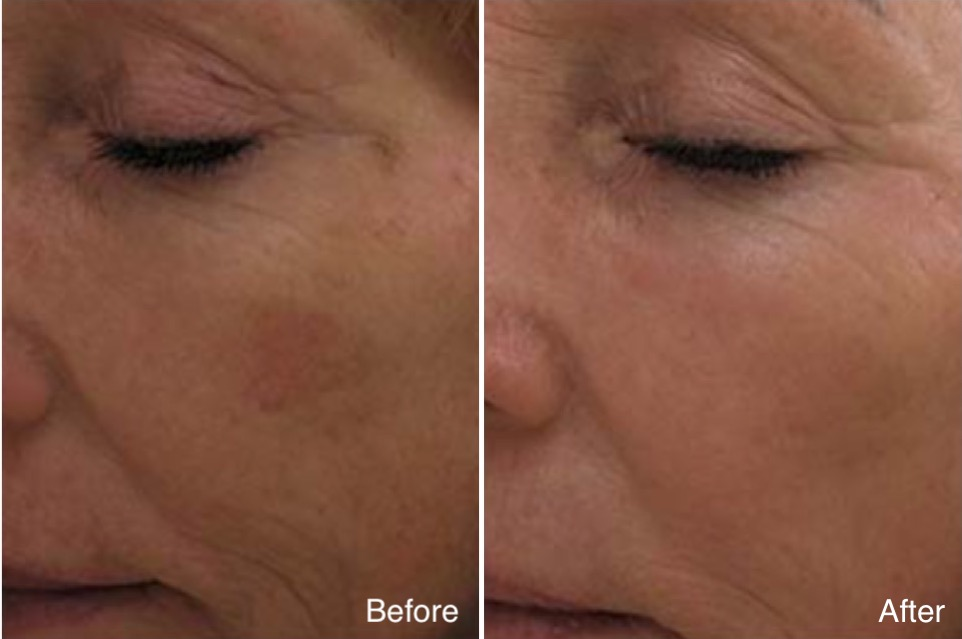 Hyperpigmentation female Patient before and after