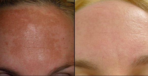 Hyperpigmentation non invasive mexico