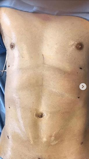 abdominal etching tijuana dr castaneda