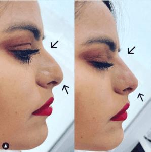 Non Surgical Nose Job Options Vida Wellness And Beauty
