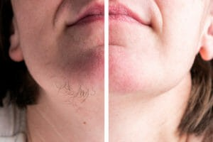 woman chin before and after hair removal