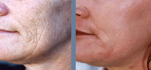 Full skin resurfacing with dermablate laser