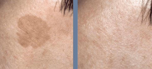 Dermablate Laser Removal of age spot