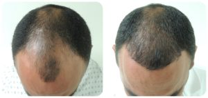 Male patient hair transplant