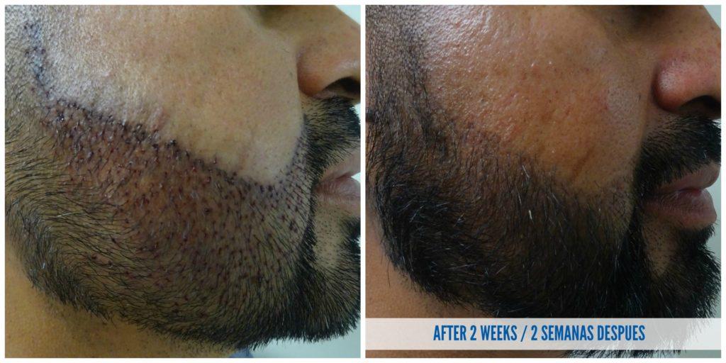 beard transplant in tijuana