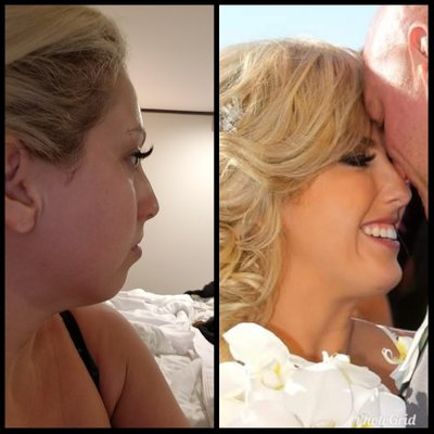 Chin implant before and after picture of a female patient