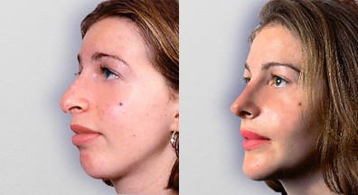 Chin and cheek implants and rhinoplasty before and after