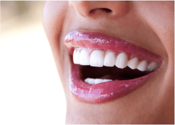 Dental Implants Pictures