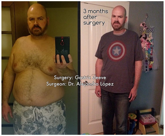 weight loss surgery before and after 3