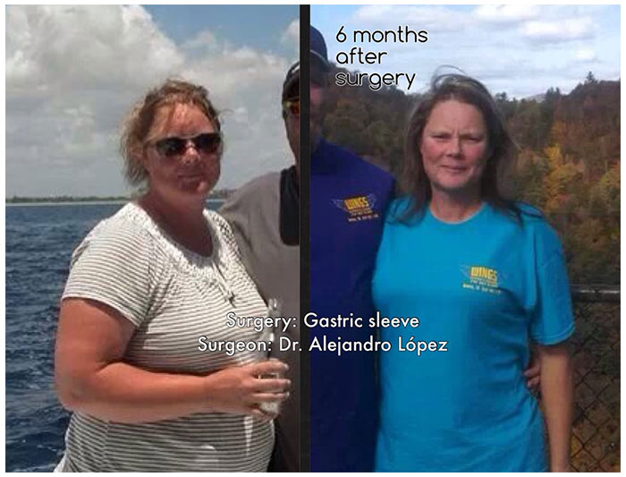 weight loss surgery before and after 2