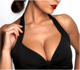 Breast reduction patient in Tijuana, Mexico