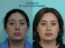 antes y despues botox