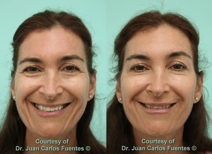 botox and fillers patient tijuana