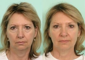 botox tijuana before and after
