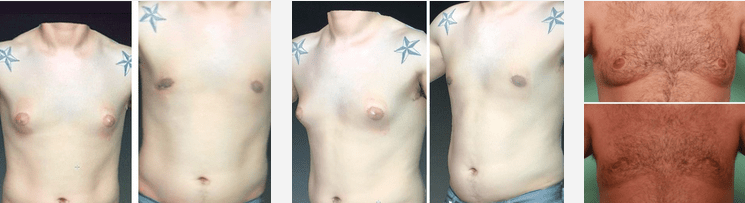 Male Breast Reduction Gynecomastia In Tijuana Vida