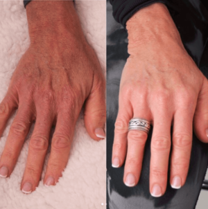 before and after hands fillers
