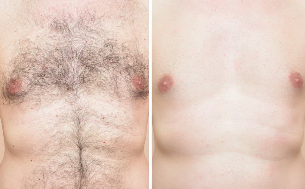 Man chest after hair removal