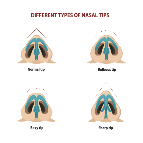 types-of-nose-tips-wide-nose-surgery