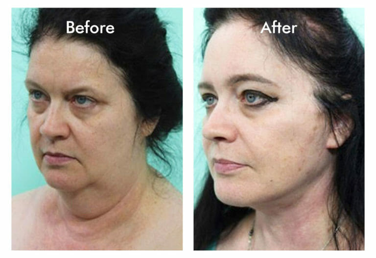 woman neck and facelift
