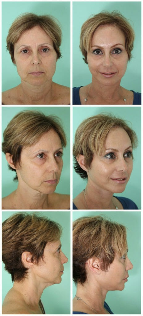 Facelift by Dr. Alejandro Quiroz Cosmed Tijuana