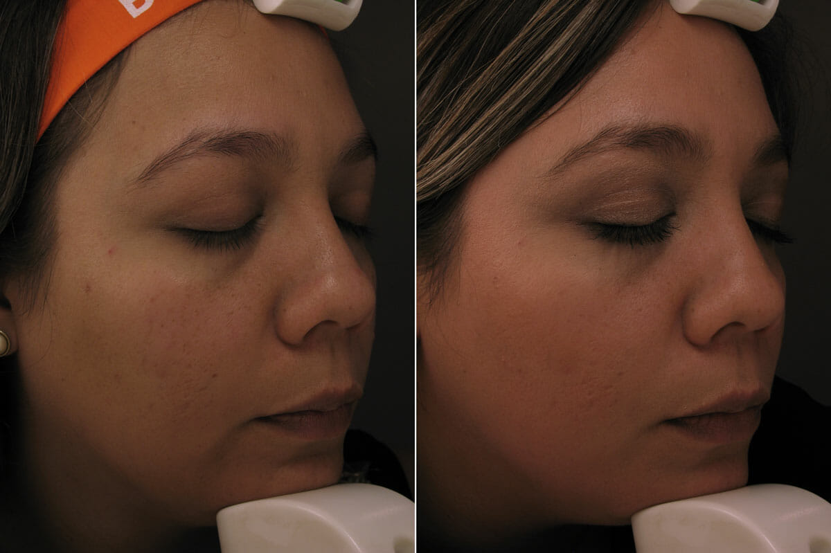 laser treatment mexico before and after