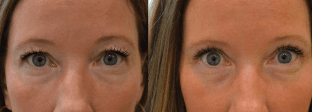 blepharoplasty in mexico