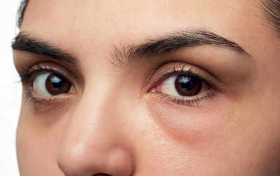 eye puffiness cosmetic surgery mexico