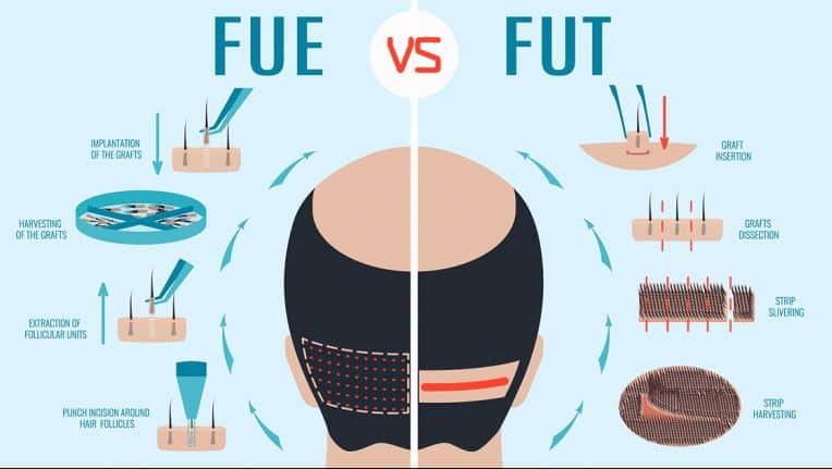 fut fue hair transplant types