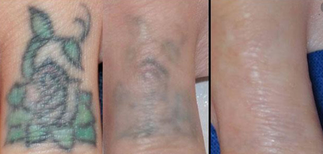 laser tattoo removal mexico