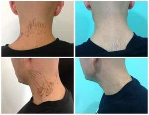 eliminacion de tatuajes tijuana