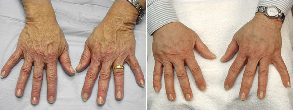 hand rejuvenation mexico 2