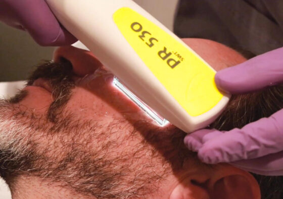 Intense Pulse Light, Facial, Skincare, Dermatology, Clinic, Spa, Medical Spa