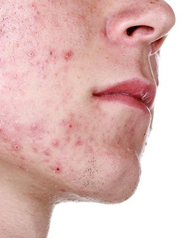 piel, dermatologia, dermatologo, enfermedades, cuidado, salud, belleza