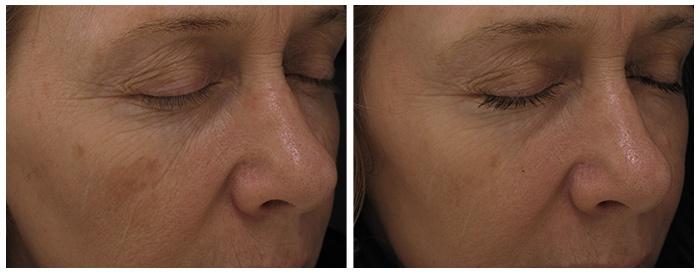 fraxel laser, Fraxel, laser therapy, skin care, beauty, dermatology, dermatologist, VIDA, tijuana