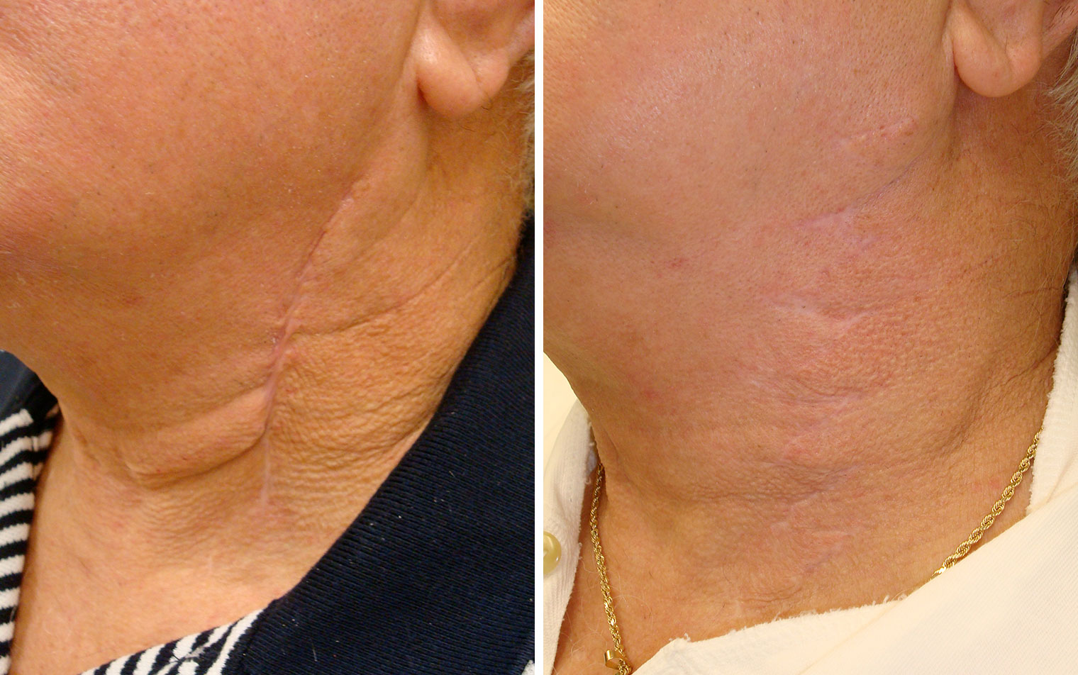 scar therapy
