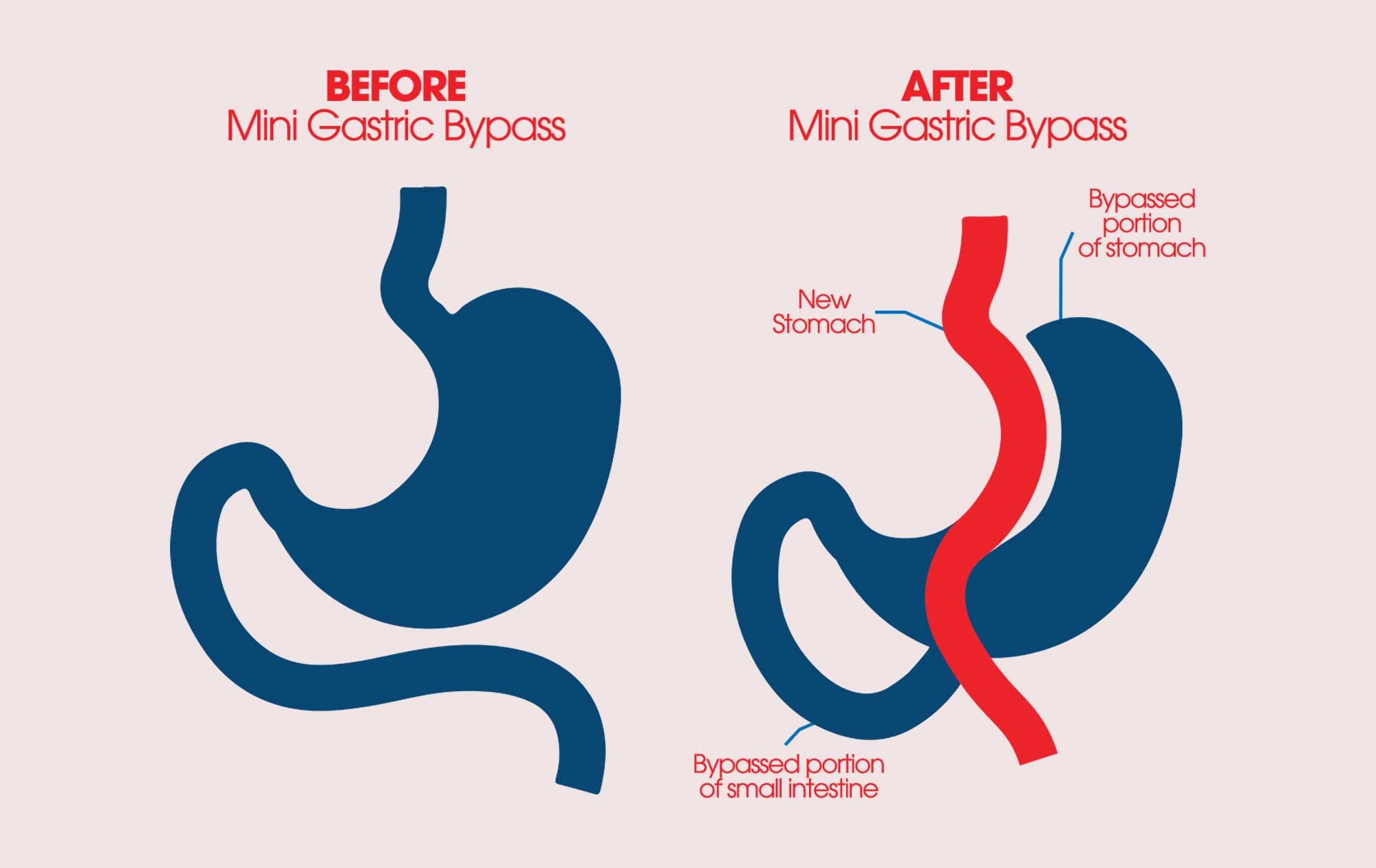 miniature gastric bypass